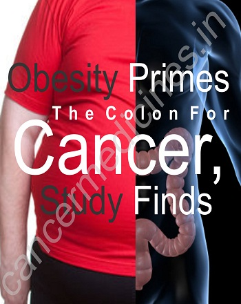 Obesity primes the colon for cancer, study finds
